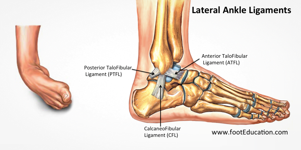Ligaments damaged in a rolled ankle